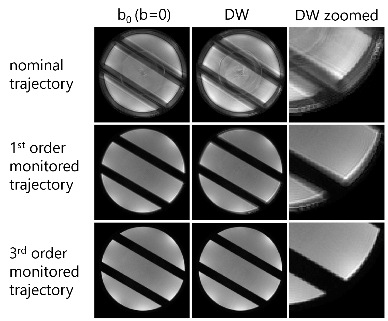 Single-shot spiral diffusion images reconstructed based on nominal and field-monitored trajectories up to third order.